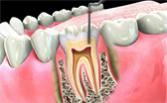 Ендодонтия - кореново лечение