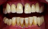 Пародонтология - лечение на венците